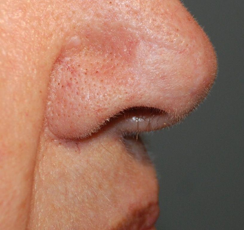 3.5 Jahre nach operativer Entfernung und Deckung mit Hauttransplantat