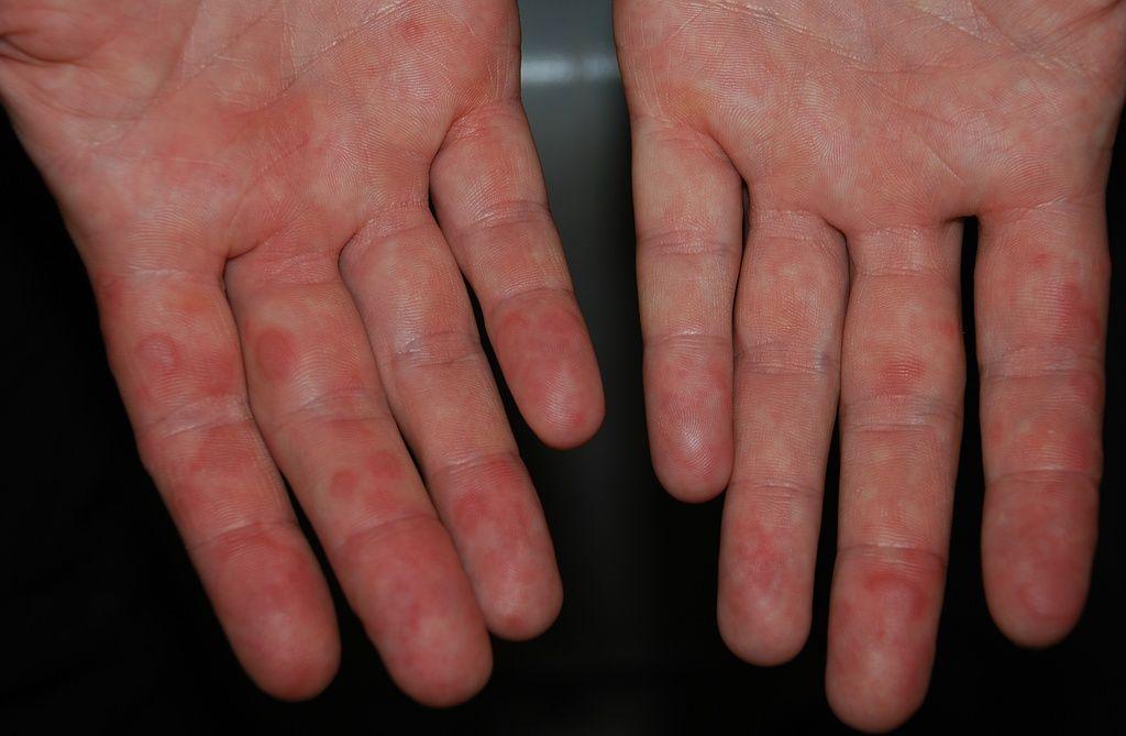 Handinnenseiten mit Scharlachausschlag