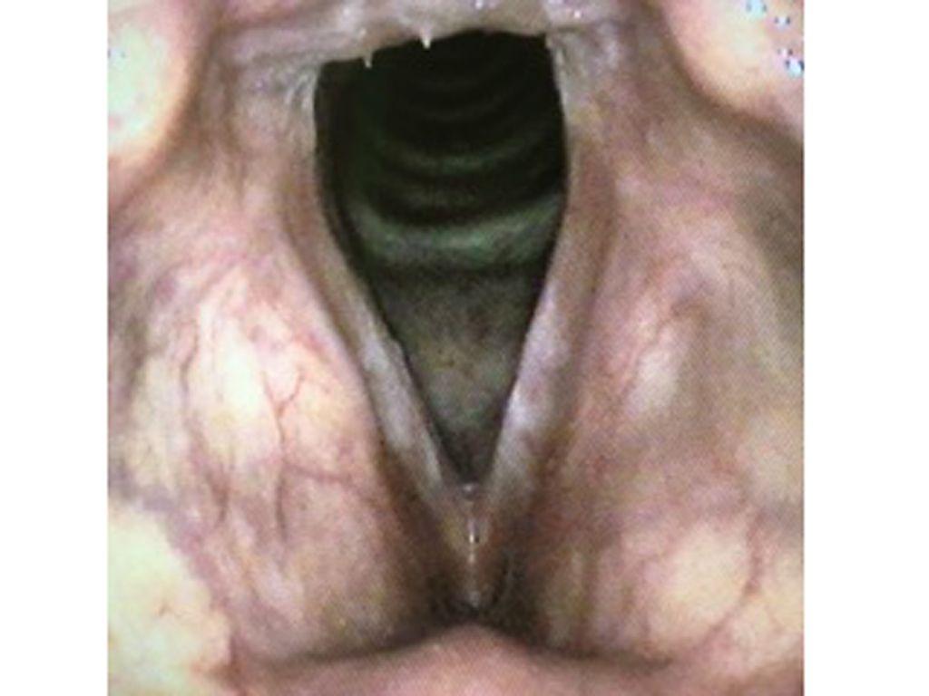 Chronische Stimmbandentzündung bei Raucher